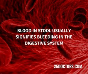 Phenomenal Black Stool Causes Diagnosis And Treatment 25 Doctors Pabps2019 Chair Design Images Pabps2019Com