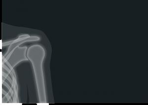 AC joint sprain severity