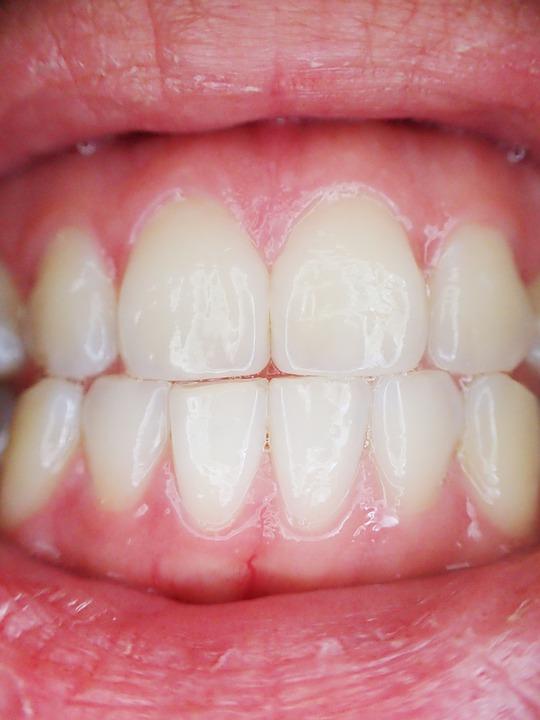 Sore gums